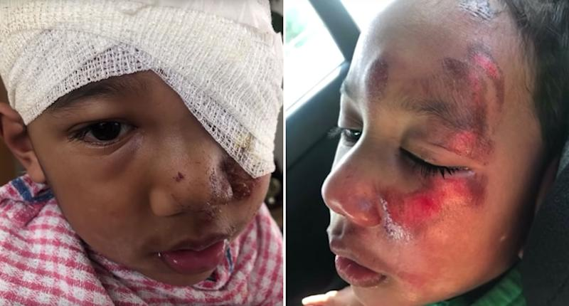 Pictured is Masua Tusa, 4, with a bandage on his head and grazes and burns on his face.