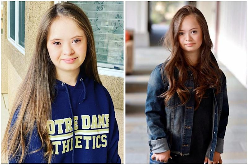 Teen Model with Down's Syndrome is Breaking Stereotypes and the Internet