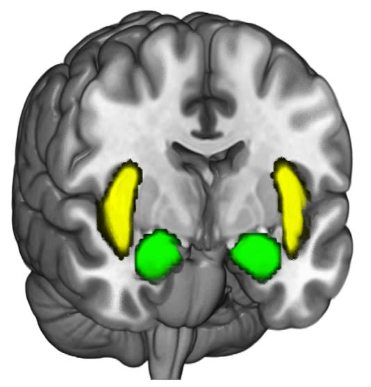 A view of the brain showing the location of the brain activity in the amygdalae (the two orange/gold nodes in the illustration) and the insular cortex. (Photo: USC Brain and Creativity Institute)