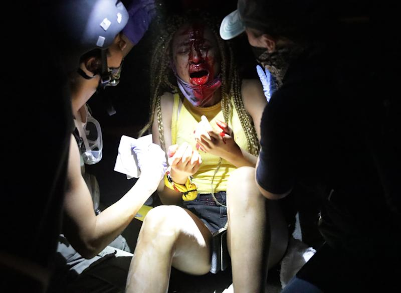 An injured women is tended to near the White House on May 30, 2020 during a protest of the killing of George Floyd.
