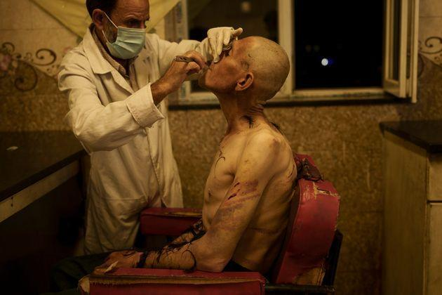 A drug user detained during a Taliban raid is shaved after arriving at Avicenna Medical Hospital for Drug Treatment in Kabul, Afghanistan, Saturday, Oct. 2, 2021. Soon after the Taliban took power on Aug. 15, the Taliban Health Ministry issued an order to the facilities underscoring their intention to strictly control the problem of addiction, doctors said. (AP Photo/Felipe Dana) (Photo: via Associated Press)