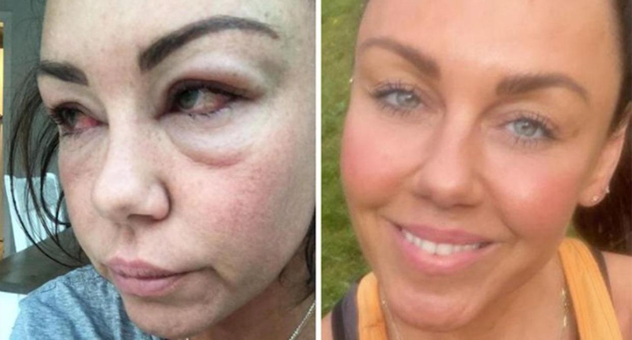 Michelle Heaton shared a picture of her 'ruined' face taken in April this year. (Instagram)