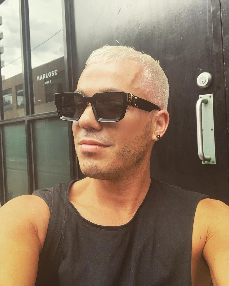 Anthony Callea wearing a black singlet top and bleached blonde hair