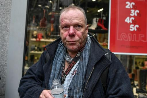 Foreign press correspondent Thomas Jacobi was left with facial bleeding after being attacked at a far-right rally in Athens