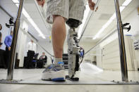 """In this Oct. 25, 2012 photo, Zac Vawter practices walking with an experimental """"bionic"""" leg at the Rehabilitation Institute of Chicago. After losing his right leg in a motorcycle accident, the 31-year-old software engineer signed up to become a research subject, helping test a trailblazing prosthetic leg that's controlled by his thoughts. He will put this leg to the ultimate test Sunday, Nov. 4 when he attempts to climb 103 flights of stairs to the top of Chicago's Willis Tower, one of the world's tallest skyscrapers. (AP Photo/Brian Kersey)"""