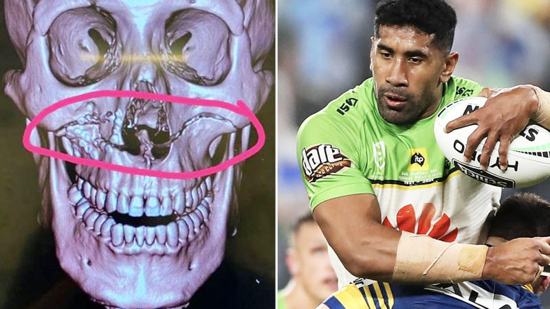 Sia Soliola, pictured here after suffering awful facial fractures.