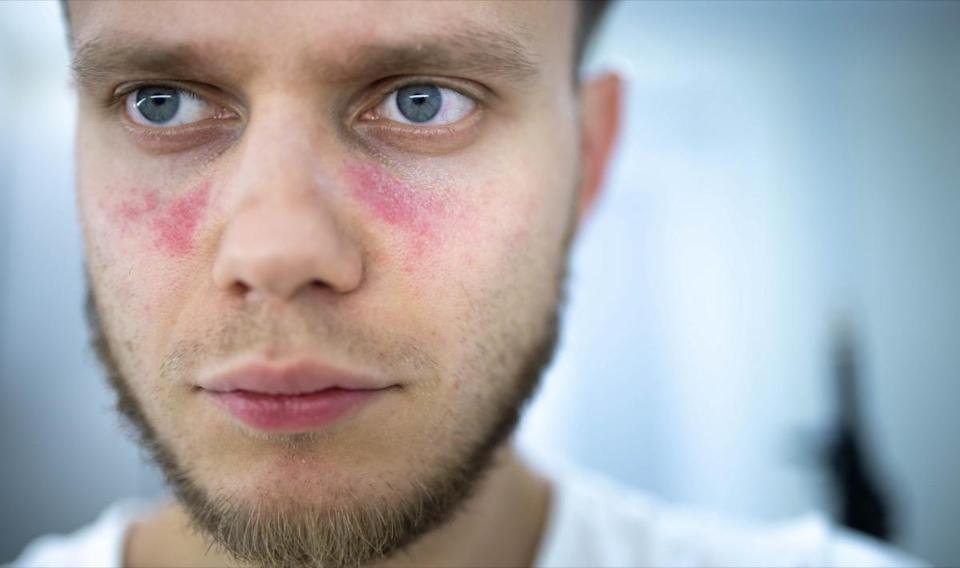 Spots of redness on the face, a young man is sick systemic lupus erythematosus
