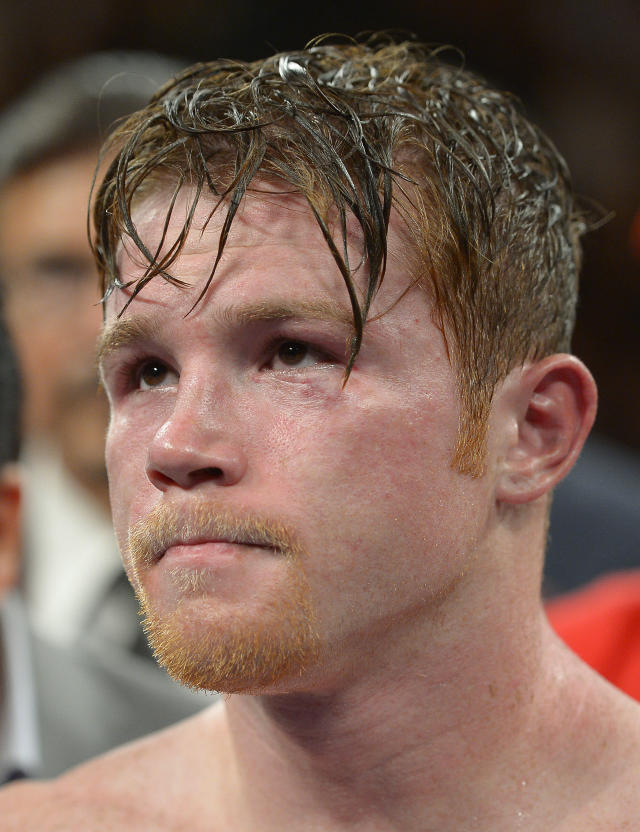 Canelo Alvarez listens as Floyd Mayweather Jr. is announced as the winner of their 152-pound title fight, Saturday, Sept. 14, 2013, in Las Vegas. (AP Photo/Mark J. Terrill)