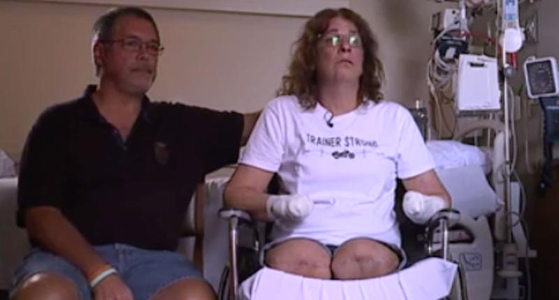 A Ohio woman pictured with her husband after a bacteria found in dog saliva caused her to lose her limbs.