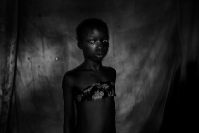 <p>Banned beauty: Suzanne, 11 years old, East Cameroon, Nov. 12, 2016. Two months before that image was taken, she experienced breast ironing until her breasts were totally gone.<br>Breast ironing is a traditional practice in Cameroon that involves massaging or pressing the breasts of pubescent girls in order to suppress or reverse breast development. The practice is carried out in the belief that it will delay maturity and help prevent rapes or sexual advances. Breast ironing is usually done by the girl's mother or an older relative. Techniques differ from region to region. Some people bind the breasts with a belt, others heat a grinding stone, spatula or pestle and use it to press or massage the breasts.<br>Although largely a Cameroonian practice, breast ironing does occur in some other countries across West and Central Africa. Local NGOs estimate that around 25 percent of women in the Cameroon have undergone some form of breast flattening; in some areas that rises to over 50 percent. Mothers explain that the painful procedure is an act of love, to make sure their daughters don't get pregnant and miss out on school or jobs. There is little medical research on the psychological and physical consequences of breast flattening, but according to the United Nations Population Fund, the practice exposes girls to numerous health problems deriving from tissue damage and infection. (Photo: Heba Khamis) </p>