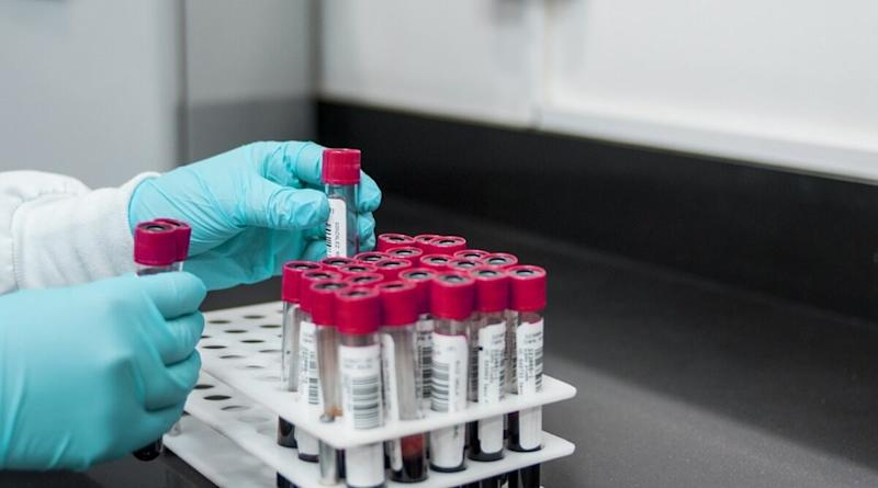 India Conducted 30,043 Coronavirus Tests on April 15, Highest in a Day So Far, Total 2,90,401 COVID-19 Tests Conducted Till Now, Says ICMR