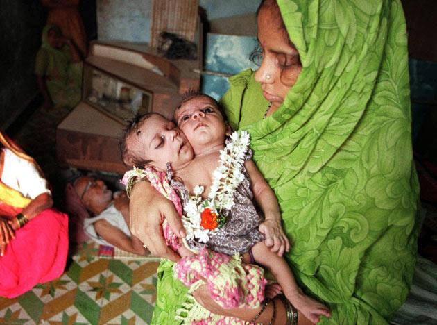 Housewife Radha Gupta holds her one month-old Siamese twins, Radha, left, and Krishna, in her in-laws' house on the outskirts of Bombay Monday Feb. 8, 1999. The parents, family elders and neighbors claim that the two-headed baby is a re-incarnation of Lord Vishnu, a Hindu mythological god, while medical doctors say that the survival and normal life of the child depends on a correction operation wherein one of the heads will be removed. Radha and her husband Vijay, have refused the operation. (AP Photo/Sherwin Crasto)