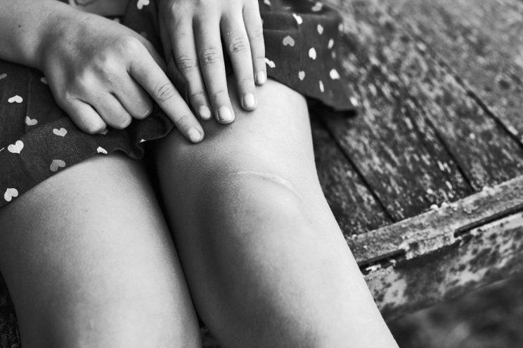 Scars may be a thing of the past soon. (Photo: Getty Images)