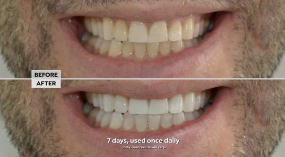 The results speak for themselves. (Photo: HSN)