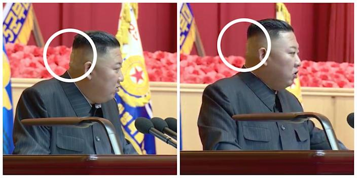 Two side by side images of Kim Jong Un at a July conference, viewed from side on. A visible band aid on the back of his head is circled by Insider.