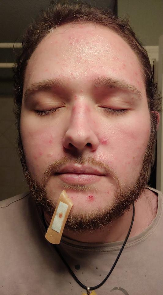 man with hidradenitis suppurativa on his face
