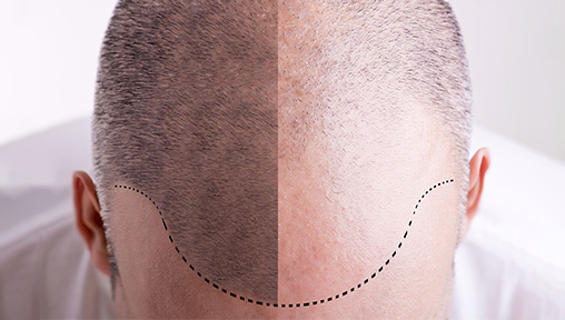Hair Loss Solutions for Men: Top 5 Treatments for Balding and Thinning Hair Lines