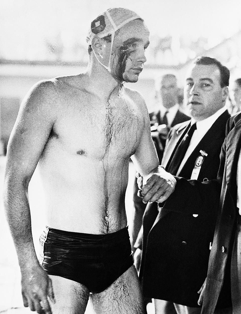 (Original Caption) 12/8/1956-Melbourne, Australia- 1956 OLYMPICS- PLAYER INJURED IN WATER POLO BRAWL. Blood streams from the cut eye of Ervin Zador- injured during a brawl with Russian water polo players during closing minutes of the Soviet-Hungary match. The match ended in chaos with the crowd booing the Russians. Throughout the match, which Hungary won 4-0, fists, elbows, knees and feet were used whenever the players came in contact.