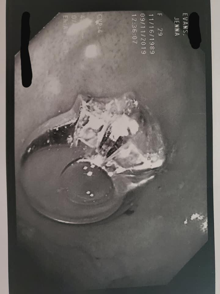 A photo of an engagement ring in a woman's intestine taken during an upper endoscopy.