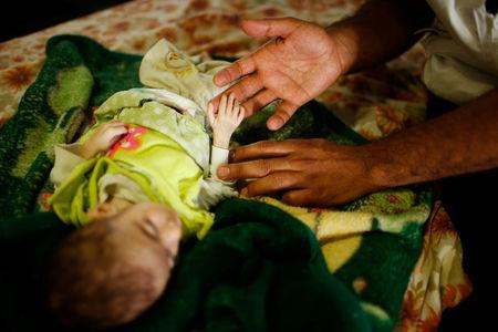 Nurse touches the hand of patient Iraqi girl Nawras Raed six month at a hospital run by MSF in Qayyara