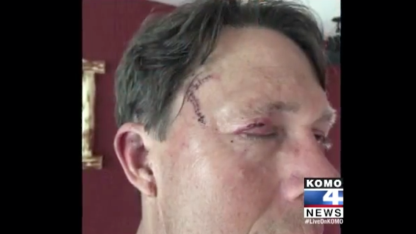 Man survives second bear attack in four years