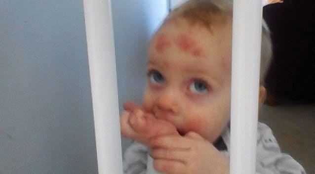 According to his mother, Braxton has been covered in scabs since an early age. Source: GoFundMe/ Chelsea Atkins