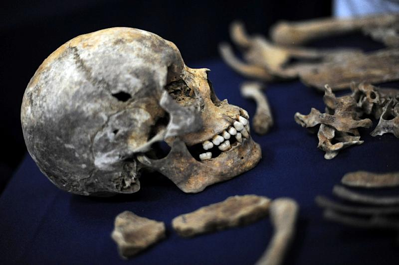 A complete albino skeleton is said to be worth as much as $75,000, according to the Red Cross