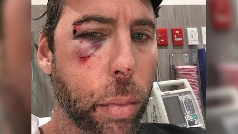 Grant Hackett was left with a black eye after an altercation with his older brother. Source: 7 News