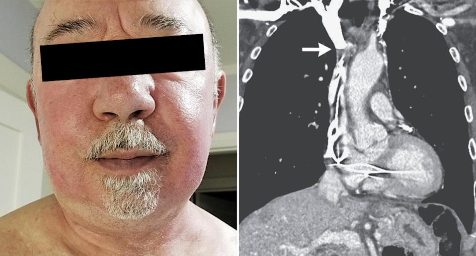 A man's face is pictured, swollen and red. A CT scan is also pictured of his chest which shows his pacemaker wiring caught in blood clots.