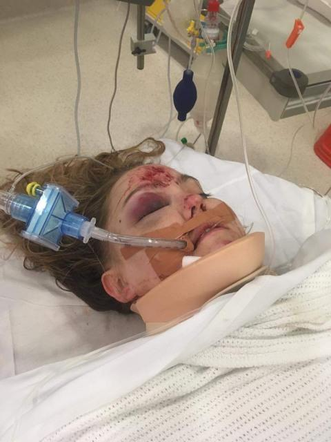 Maddy Read unconscious in hospital with bruises on her face after the fall.