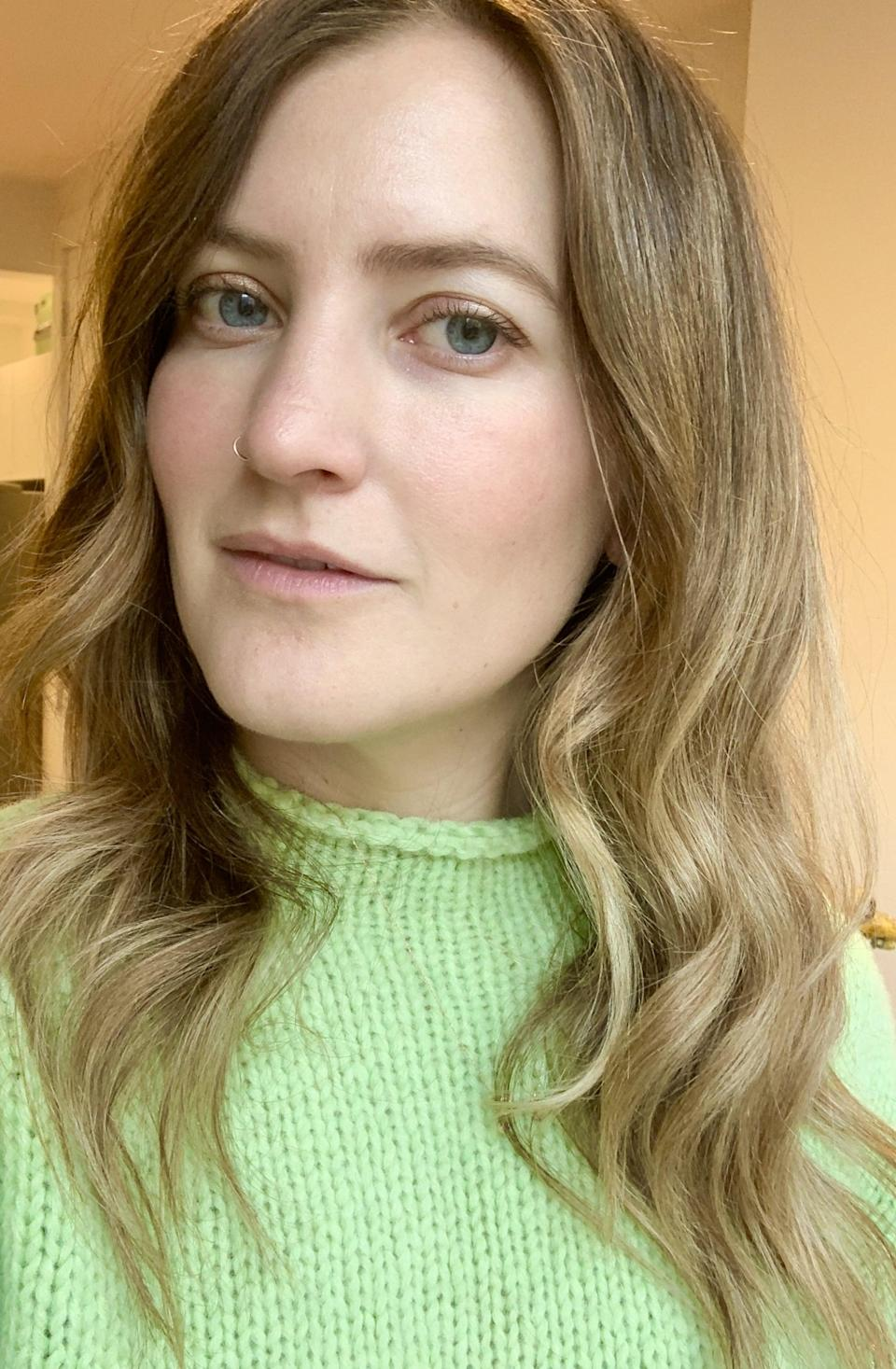 """<p>I can officially say I'm in love with how my face looks. I wake up looking """"alive, alert, awake, enthusiastic,"""" as my mom would say, and I don't need to wear any concealer. My face feels totally normal (maybe I've just gotten used to the feeling of fillers?) and there's no tenderness. I'm still a little shocked at how much difference smoothing out those few little wrinkles has made, both in how I look and how I feel confidence-wise. I'm going back to Dr. Marmur in a few days for a little tweak, but I couldn't be happier with the results. Consider me a filler convert.</p>"""