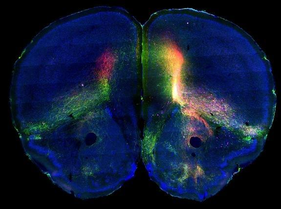 Researchers injected mouse brains with tracers that would show both incoming and outgoing signals.