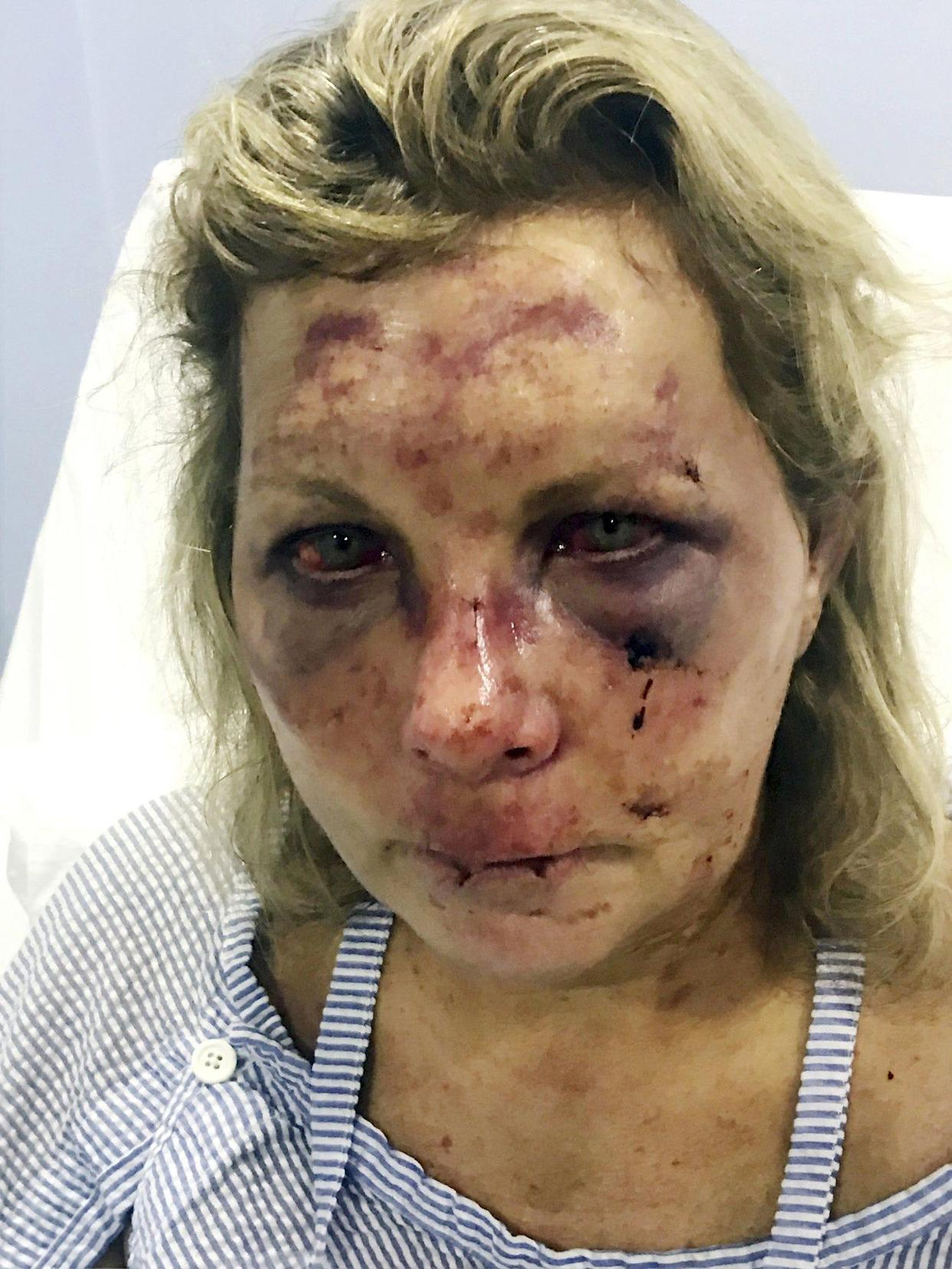 In this undated photo made available by Chris Daley, shows his wife Tammy Lawrence-Daley after an attack at a resort in Punta Cana, Dominican Republic in January 2019. Lawrence-Daley made the attack public on social media, detailing a vicious hours-long assault by a man she said was wearing the uniform of an all-inclusive resort.