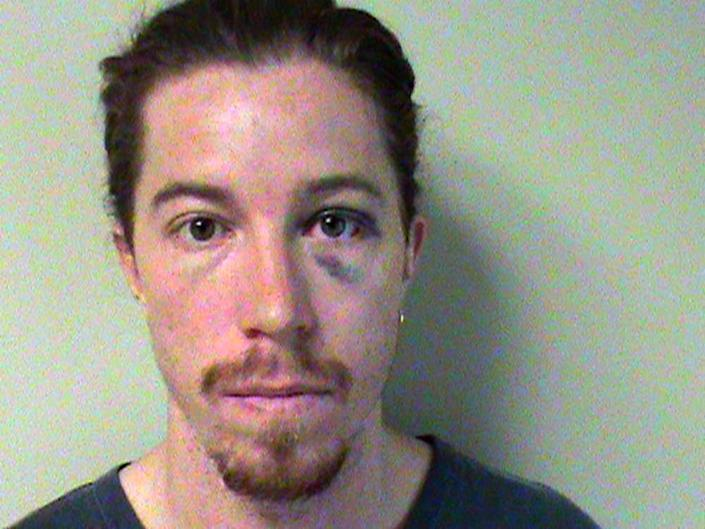 This photo provided by the Metropolitan Nashville Police Department shows Shaun White. A police report says the two-time Olympic gold medalist snowboarder was charged with vandalism after an employee at a Nashville hotel saw him break a phone there. He is charged with vandalism of $500 or less. (AP Photo/Metropolitan Nashville, Tenn., Police Dept.)