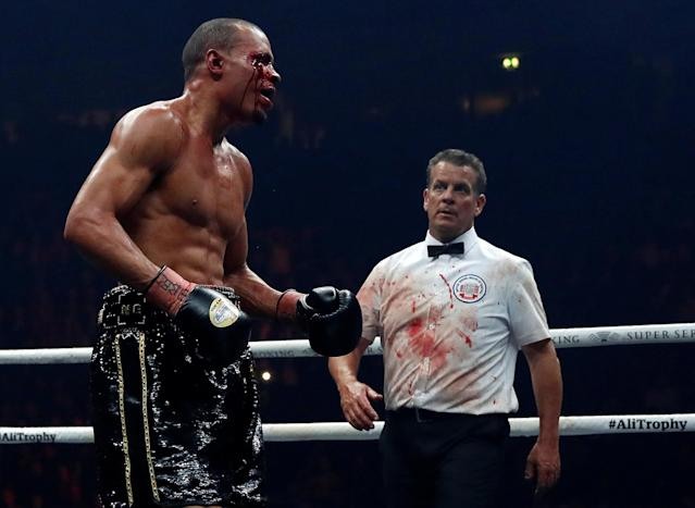 Boxing - World Boxing Super Series Semi Final - George Groves vs Chris Eubank Jr - WBA & IBO World Super-Middleweight Titles - Manchester Arena, Manchester, Britain - February 17, 2018 Chris Eubank Jr with a cut to his right eye during the fight as referee Michael Alexander looks on Action Images via Reuters/Andrew Couldridge