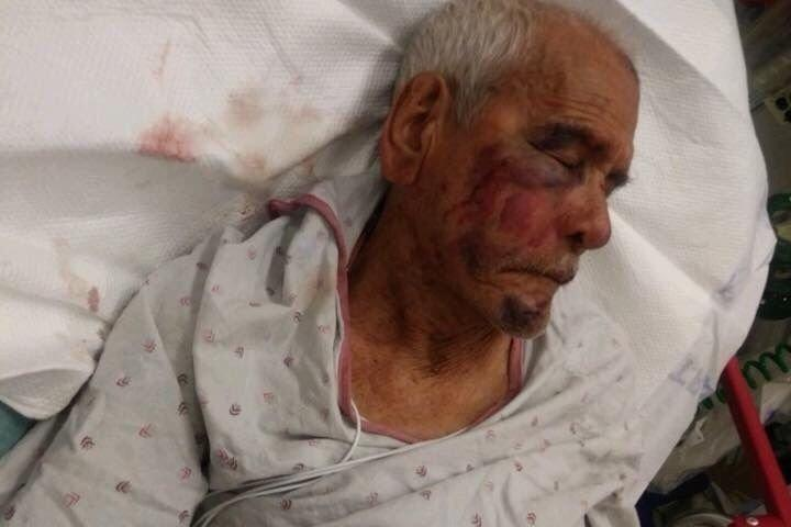 Rodolfo Rodriguez, who will turn 92 in September, recovers in the hospital after the alleged July 4 attack. (GoFundMe)