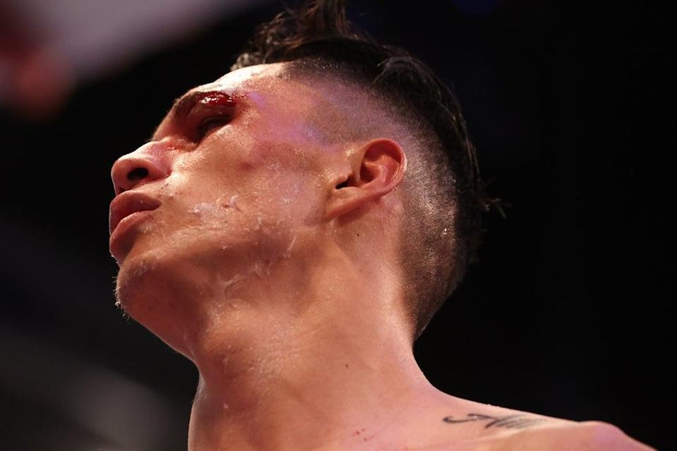 Mauricio Lara was cut during an accidental clash of heads in Leeds  (Action Images via Reuters)