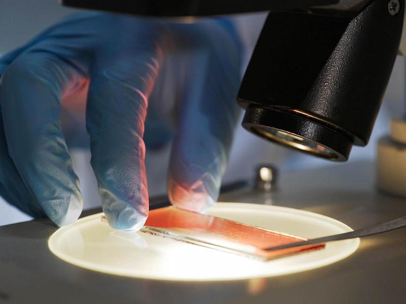 Scientists carried out tests on 725 separate cancer cell lines grown from patients with 25 different cancer types: Getty/iStock