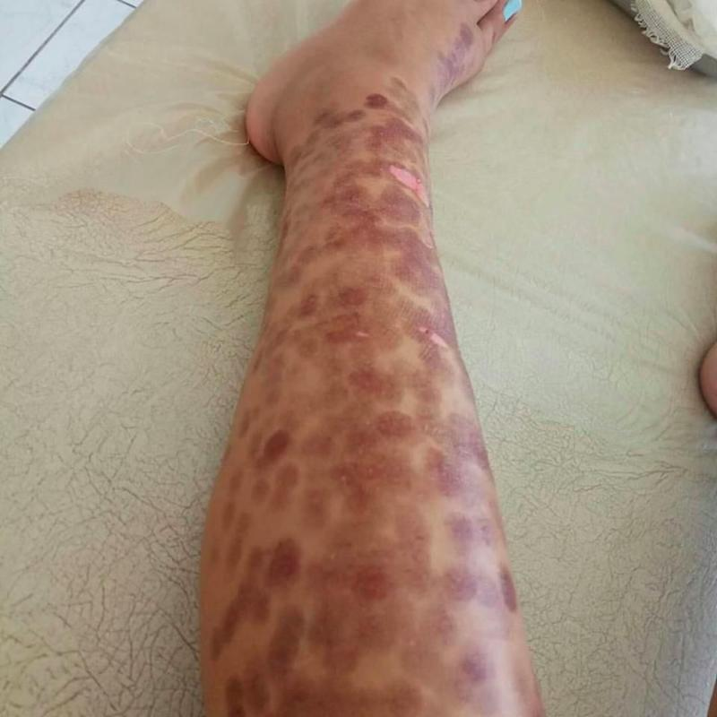 Laser hair removal left Anastasia with blisters across her legs. Source: Facebook