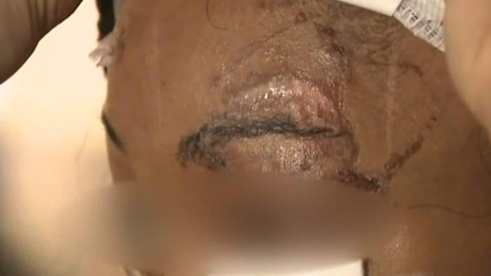 A woman in New York City is claiming that one of the three men who recently attacked her outside of a Harlem liquor store tried to bite her eye out. (CBS2)