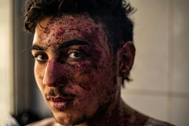 19-year-old Syrian Democratic Forces fighter Suleiman Suleiman, wounded in Turkish airstrikes on Ras Al-Ain, receives treatment in Hasakeh, Syria (AFP Photo/DELIL SOULEIMAN)