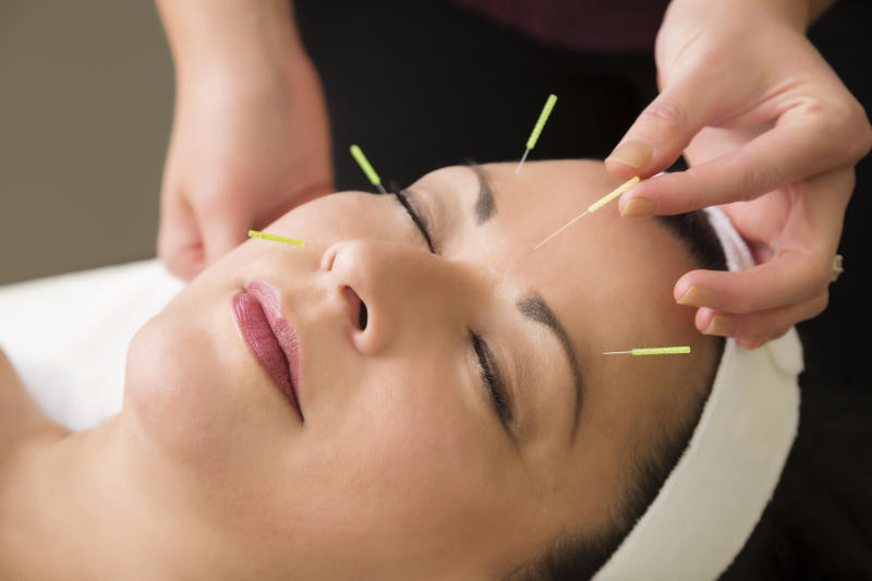 Spa series: middle aged woman in the spa getting acupuncture treatment. You might also be interested in these: