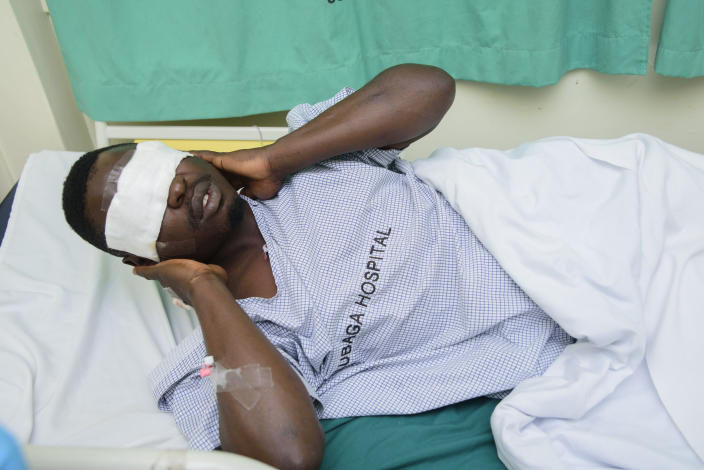 "Mityana Municipality politician, Zaake Francis, close ally to opposition leader Bobi Wine gestures, in Rubaga hospital, Kampala, Uganda, Sunday, Jan. 17, 2021, after he was alledgedly beaten by security personnel at the gates of Bobi Wine's house on Saturday. A day after Uganda's longtime leader was declared the winner of the country's presidential election, the opposition party dismissed the results as ""fraud"" and called for the release of their leader, Bobi Wine, who has been under alleged house arrest for several days. (AP Photo/Nicholas Bamulanzeki)"