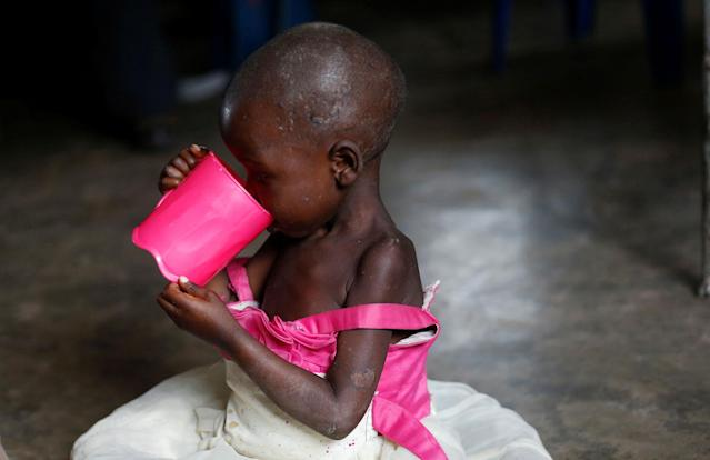 <p>A severely acute malnourished and internally displaced Congolese child drinks porridge as she waits to receive medical attention at the Tshiamala general referral hospital of Mwene Ditu in Kasai Oriental Province in the Democratic Republic of Congo, March 15, 2018. (Photo: Thomas Mukoya/Reuters) </p>