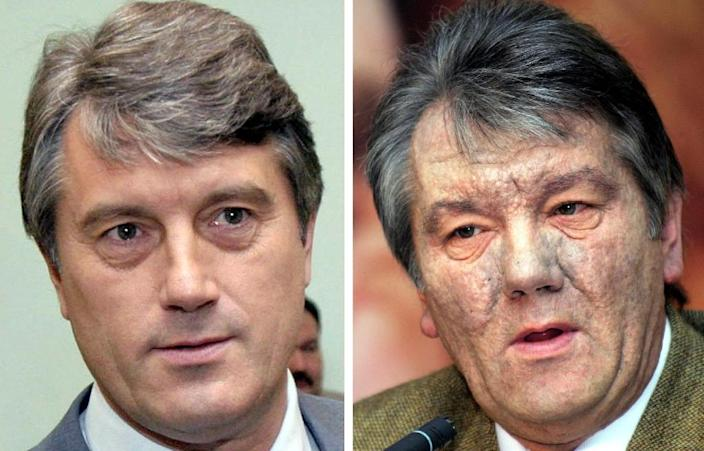 These two images show Ukrainian politician Viktor Yushchenko, before (left) and after he was poisoned with dioxin in 2004 (AFP Photo/STF)