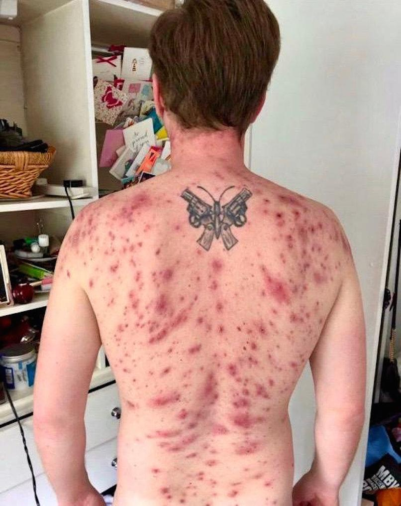 James Michael was left with extreme acne caused by steroids he took after a parasite crawled up his penis (Picture: SWNS)