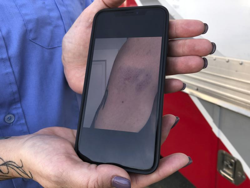 In this photo taken Nov. 6, 2019, Trisha Preston, a paramedic, displays a photo on her phone showing one of her recent injuries on the job outside the headquarters of her employer, American Medical Response, in Portland, Ore. Preston was attacked in the back of her ambulance by a patient in a mental illness earlier this year and sustained bruising, bite marks and a concussion that left her with temporary double vision and headaches. AMR, the private ambulance company that holds Portland's 911 contract, is now providing training in defensive tactics to more than 500 paramedics this fall in response to a wave of high-profile attacks on its employees. (AP Photo/Gillian Flaccus)