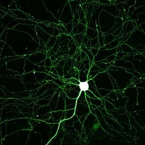 Scientists use new programs to map connections of the human brain