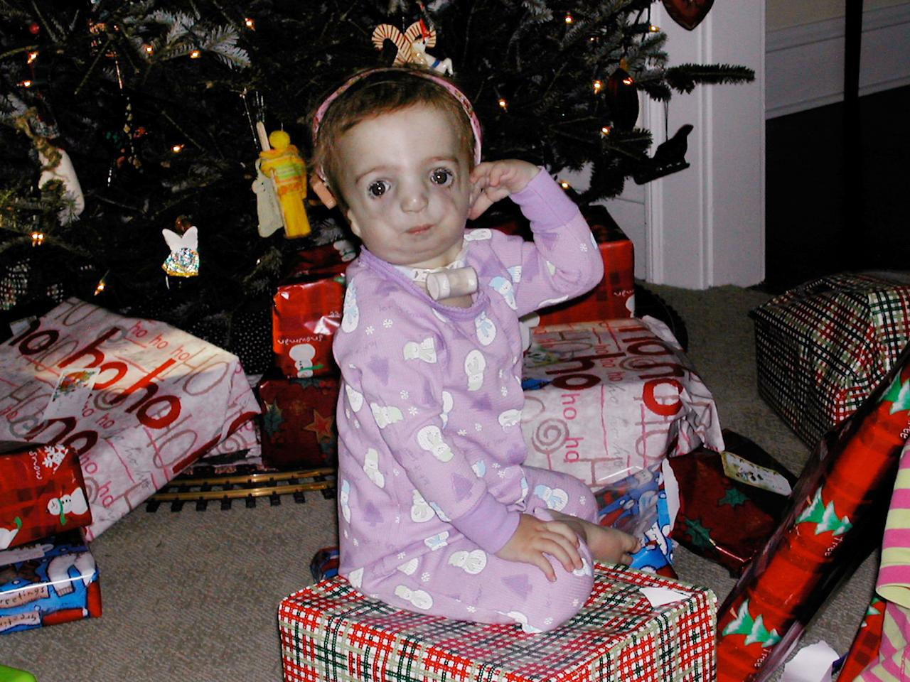 In this Dec. 25, 2003 photo provided by the family, Clara Beatty, then 16 months old, sits on top of a wrapped present next to a Christmas tree at home in Winnetka, Ill. Clara was born with facial deformities caused by a genetic mutation called Treacher Collins syndrome. She wears hearing aids and will likely undergo cosmetic surgery to extend her jaw and increase the size of her cheekbones when she is a teenager. (AP Photo)