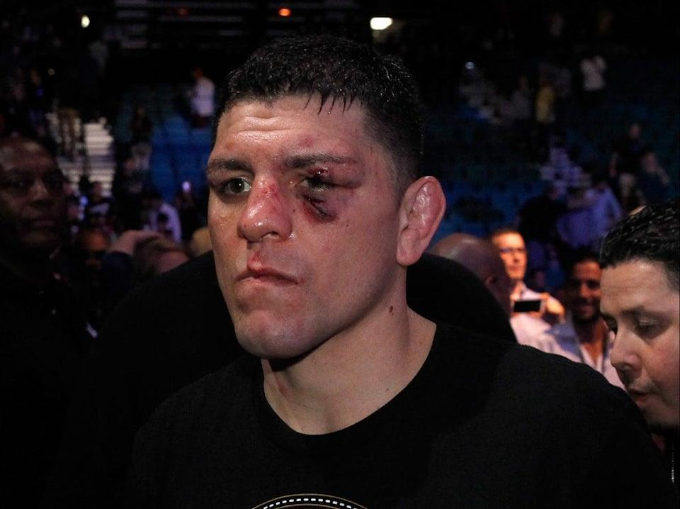 Nick Diaz after his last fight, in 2015 (Getty Images)
